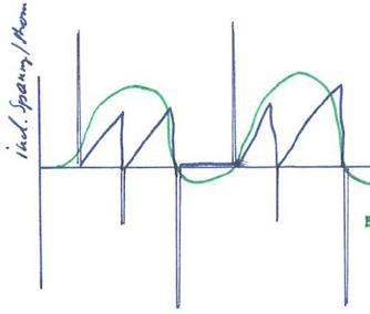 QRS wave form