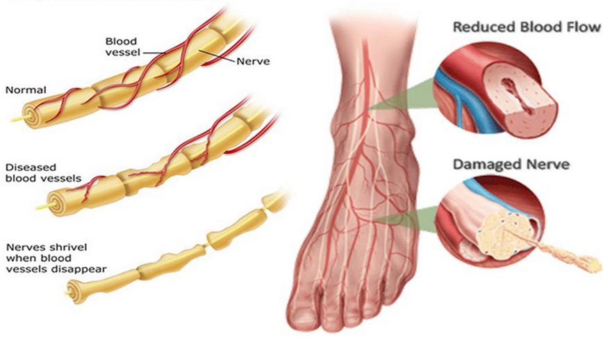 Neuropathy and PEMF